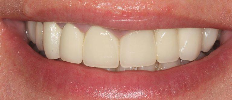 dental smile makeover in kent