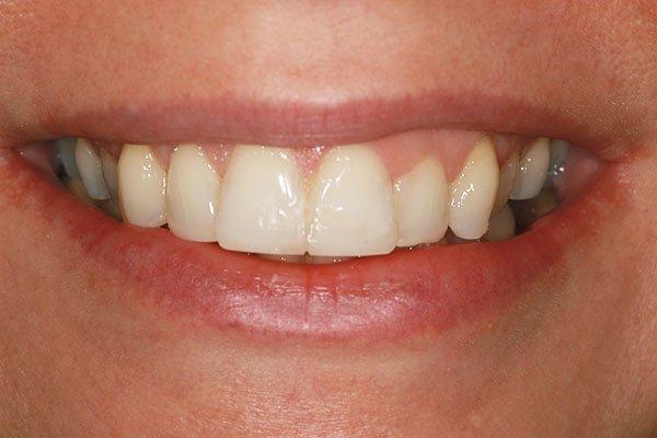 smile-makeover-romford