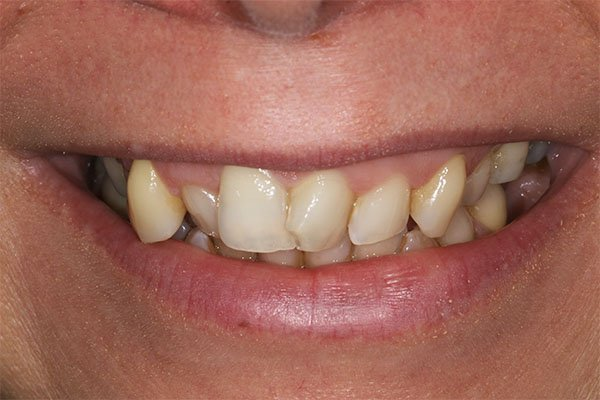 teeth-straightening-romford
