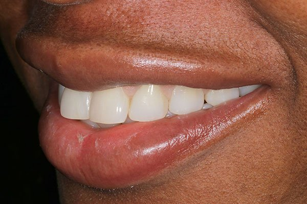 lola-after-teeth-whitening-2