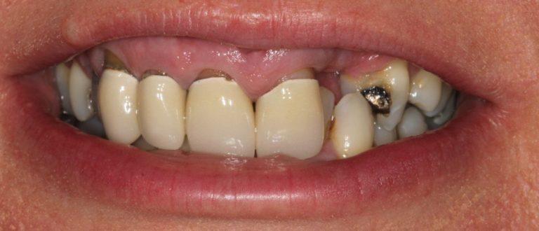 dentist-smile-makeover